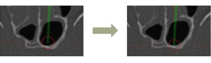 Before: Depth inaccuracy – After: Enhanced accuracy