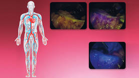 Blood perfusion assessment of colon section in a colorectal cancer patient – Source: Prof. Luigi Boni, University of Insubria, Varese, Italy